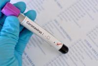 На Буковине уже более 5 тыс. инфицированных COVID-19
